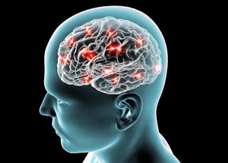 Keine Demenz trotz Alzheimer Plaques!