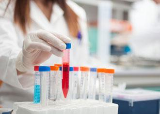 Berliner Krebsforscher identifizieren Immunzellen als Wachstumsbeschleuniger von Lymphdrüsenkrebs