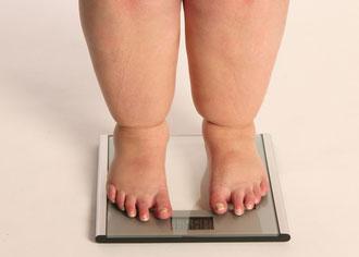 Ärzte kommen neuer Ursache für Fettsucht auf die Schliche