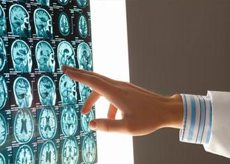 Neuroonkologische Zentren: Niemand wird mit einem Hirntumor Rezidiv einfach nach hause geschickt