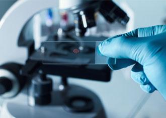 Charité-Forscher entdecken neuen Therapieansatz gegen Krebs