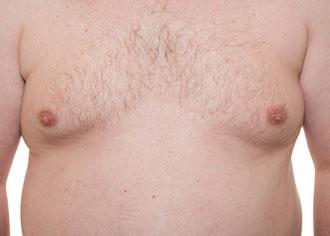 Brustkrebs bei Männern – selten, aber wahr