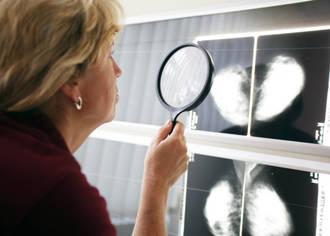 Weniger falsch positive und falsch negative Befunde nach Mammographie: Fünf Ärzte sehen mehr als einer