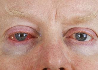 Rotes Auge: Ein Symptom, viele Ursachen