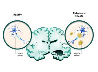 Alzheimer macht auch Gesunden Angst, besonders älteren Menschen